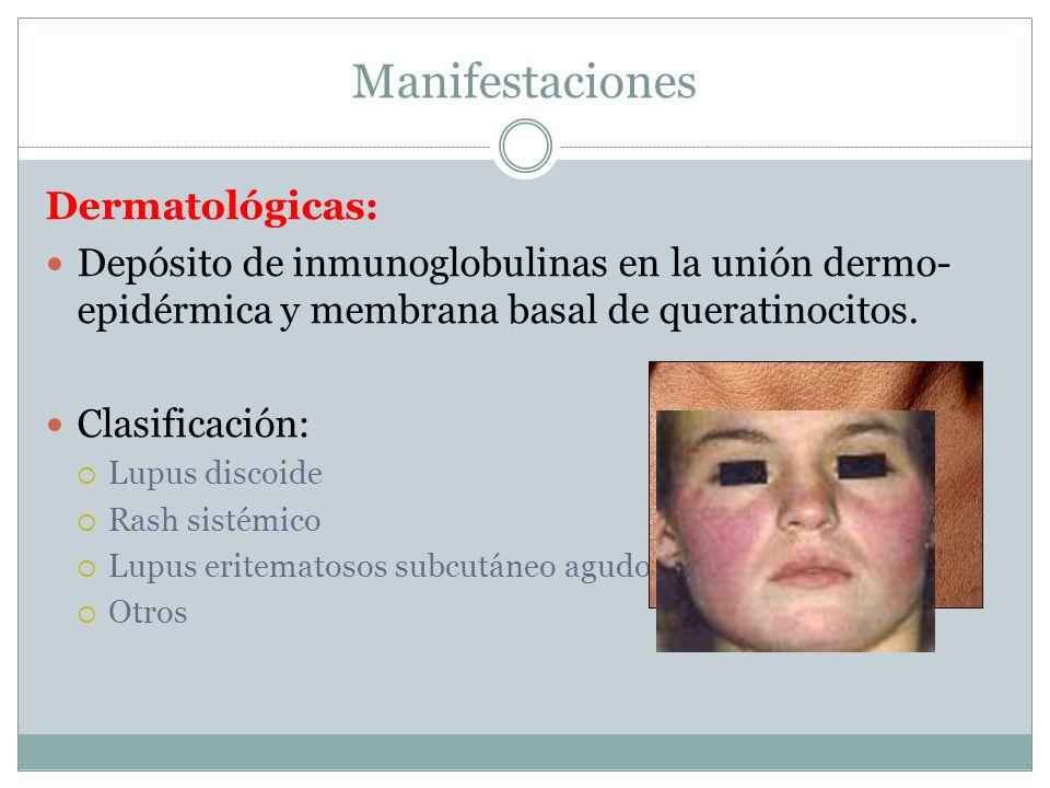 Manifestaciones Dermatológicas: Depósito de inmunoglobulinas en la unión dermo- epidérmica y membrana basal de queratinocitos. Clasificación: Lupus di