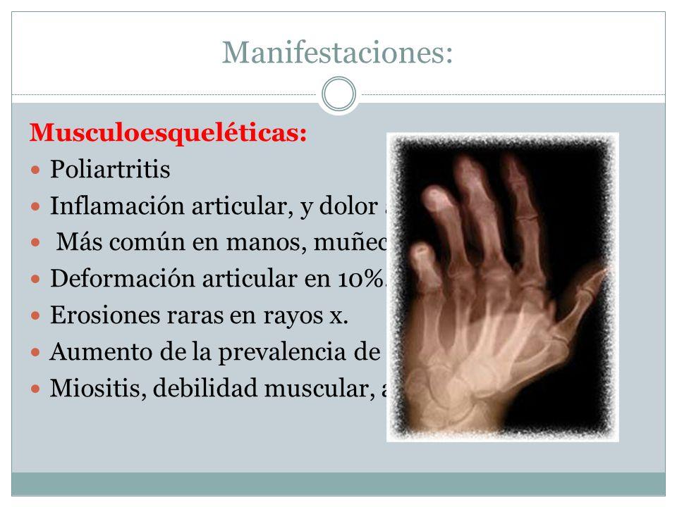 Manifestaciones: Musculoesqueléticas: Poliartritis Inflamación articular, y dolor a la palpación. Más común en manos, muñecas, y rodillas. Deformación