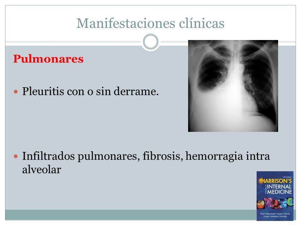 Manifestaciones clínicas Pulmonares Pleuritis con o sin derrame. Infiltrados pulmonares, fibrosis, hemorragia intra alveolar