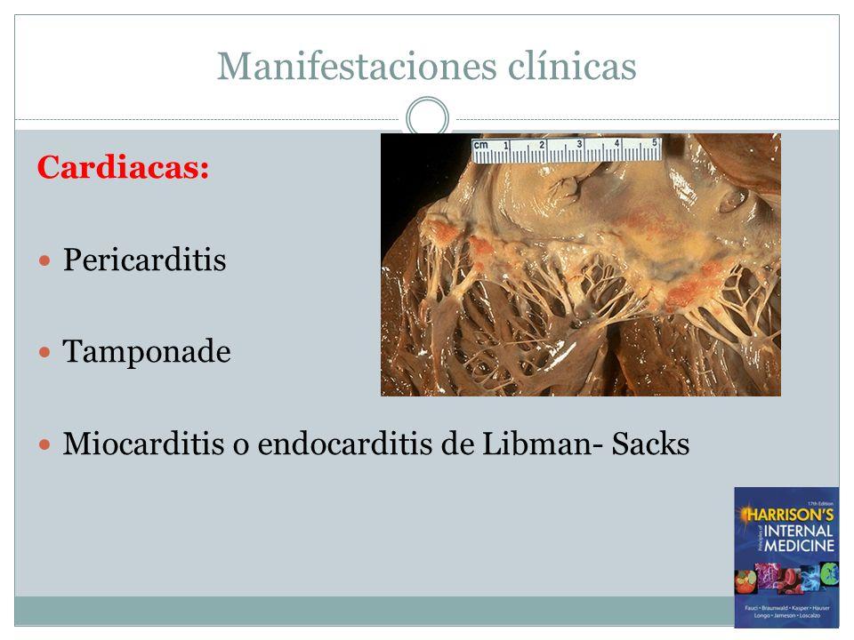 Manifestaciones clínicas Cardiacas: Pericarditis Tamponade Miocarditis o endocarditis de Libman- Sacks