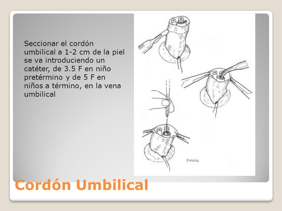 Cordón Umbilical Seccionar el cordón umbilical a 1-2 cm de la piel se va introduciendo un catéter, de 3.5 F en niño pretérmino y de 5 F en niños a tér