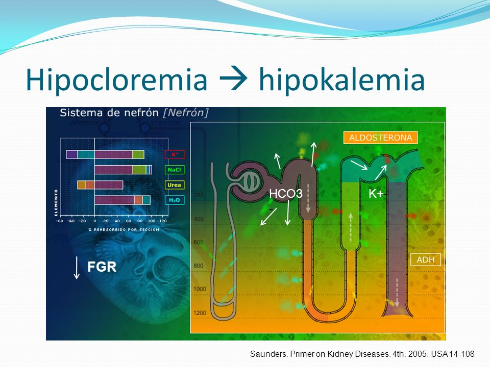Hipocloremia hipokalemia FGR HCO3 - K+- Saunders. Primer on Kidney Diseases. 4th. 2005. USA 14-108