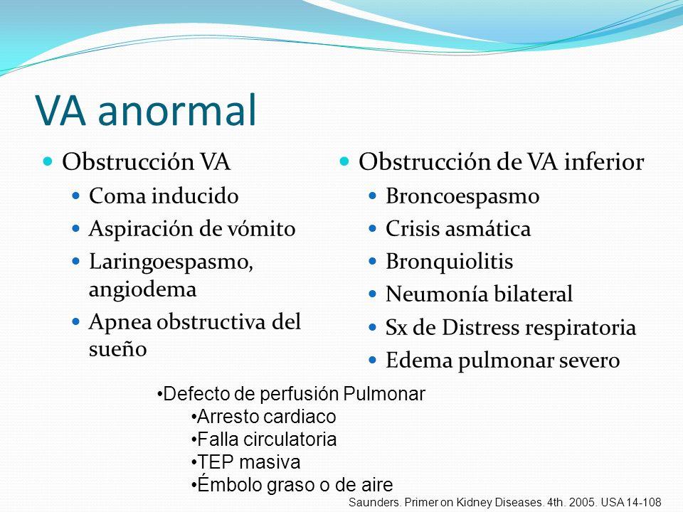 VA anormal Obstrucción VA Coma inducido Aspiración de vómito Laringoespasmo, angiodema Apnea obstructiva del sueño Obstrucción de VA inferior Broncoes