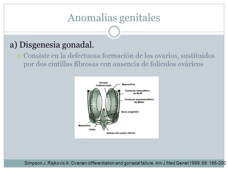 Anomalias genitales a) Disgenesia gonadal. Consiste en la defectuosa formación de los ovarios, sustituidos por dos cintillas fibrosas con ausencia de