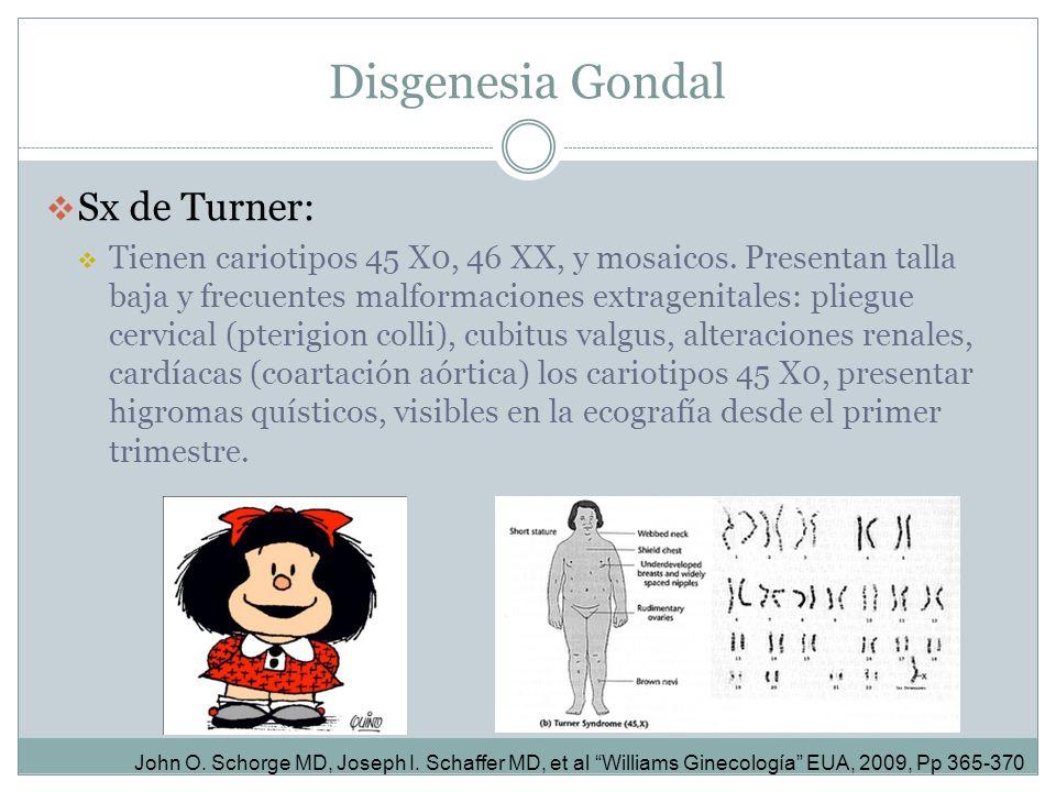 Disgenesia Gondal Sx de Turner: Tienen cariotipos 45 X0, 46 XX, y mosaicos. Presentan talla baja y frecuentes malformaciones extragenitales: pliegue c