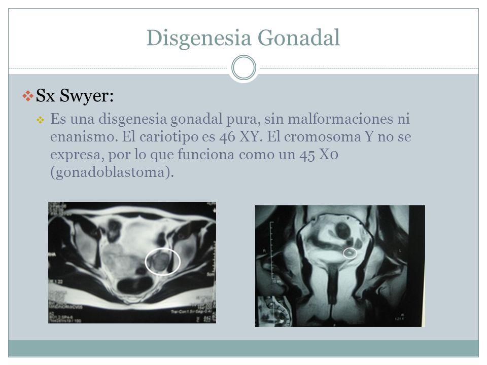 Disgenesia Gonadal Sx Swyer: Es una disgenesia gonadal pura, sin malformaciones ni enanismo. El cariotipo es 46 XY. El cromosoma Y no se expresa, por