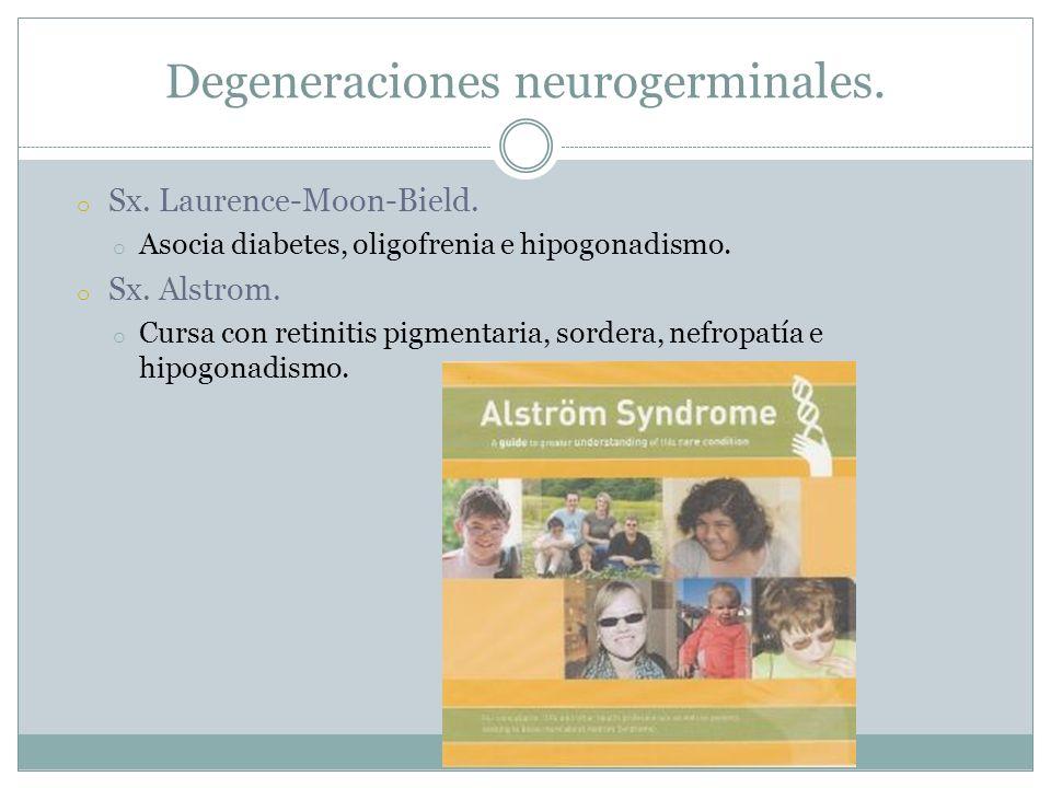 o Sx. Laurence-Moon-Bield. o Asocia diabetes, oligofrenia e hipogonadismo. o Sx. Alstrom. o Cursa con retinitis pigmentaria, sordera, nefropatía e hip