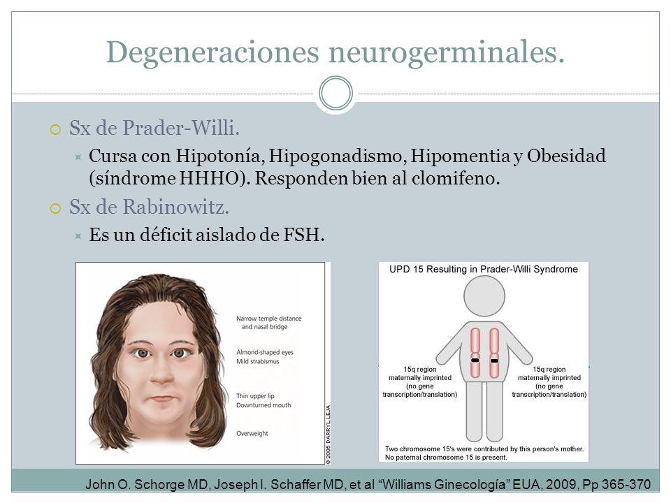 Sx de Prader-Willi. Cursa con Hipotonía, Hipogonadismo, Hipomentia y Obesidad (síndrome HHHO). Responden bien al clomifeno. Sx de Rabinowitz. Es un dé