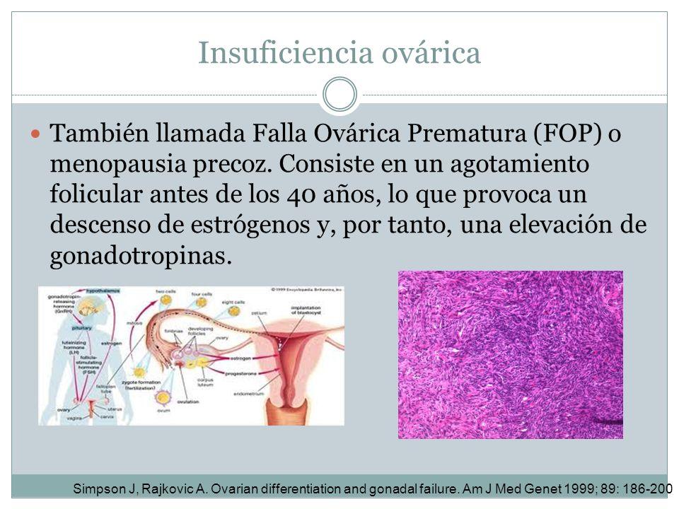 Insuficiencia ovárica También llamada Falla Ovárica Prematura (FOP) o menopausia precoz. Consiste en un agotamiento folicular antes de los 40 años, lo