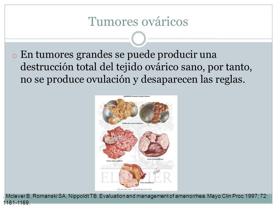 Tumores ováricos o En tumores grandes se puede producir una destrucción total del tejido ovárico sano, por tanto, no se produce ovulación y desaparece