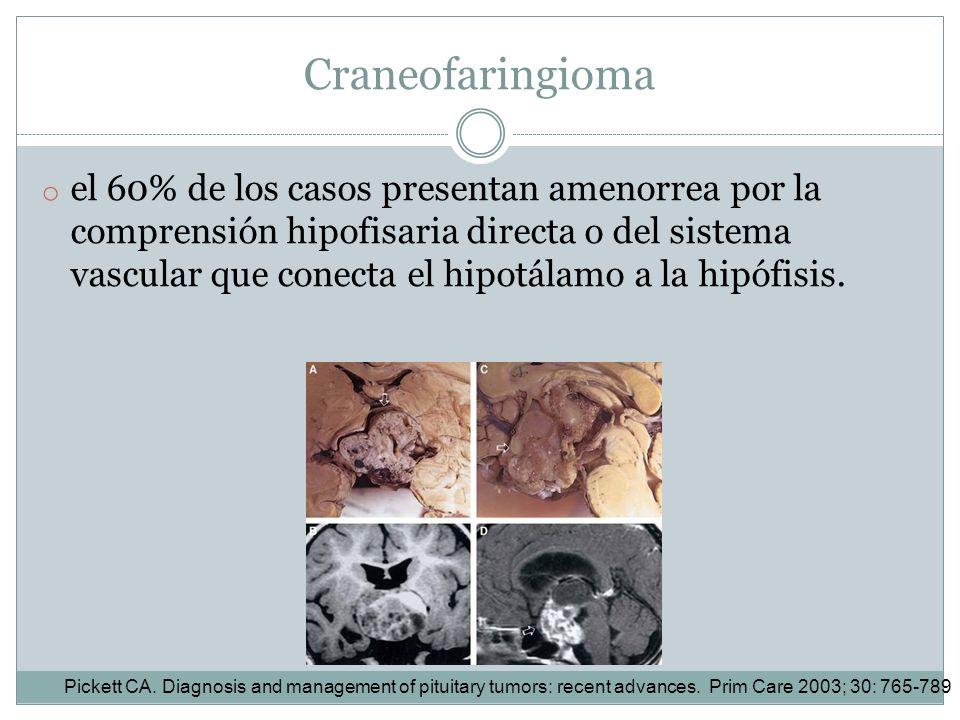 Craneofaringioma o el 60% de los casos presentan amenorrea por la comprensión hipofisaria directa o del sistema vascular que conecta el hipotálamo a l