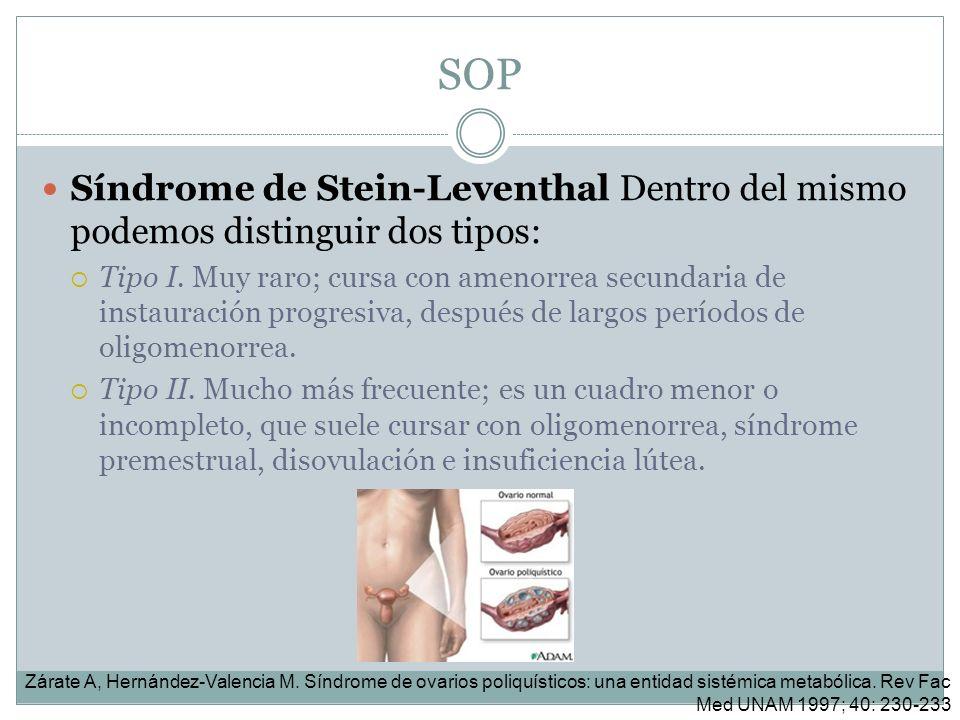 SOP Síndrome de Stein-Leventhal Dentro del mismo podemos distinguir dos tipos: Tipo I. Muy raro; cursa con amenorrea secundaria de instauración progre