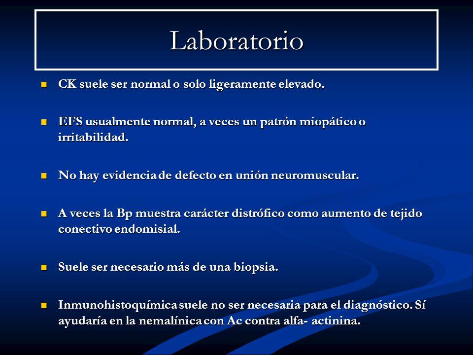 Laboratorio CK suele ser normal o solo ligeramente elevado. CK suele ser normal o solo ligeramente elevado. EFS usualmente normal, a veces un patrón m