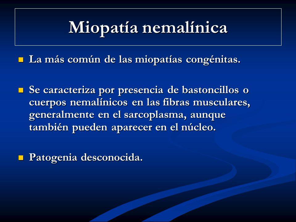 Miopatía nemalínica La más común de las miopatías congénitas. La más común de las miopatías congénitas. Se caracteriza por presencia de bastoncillos o