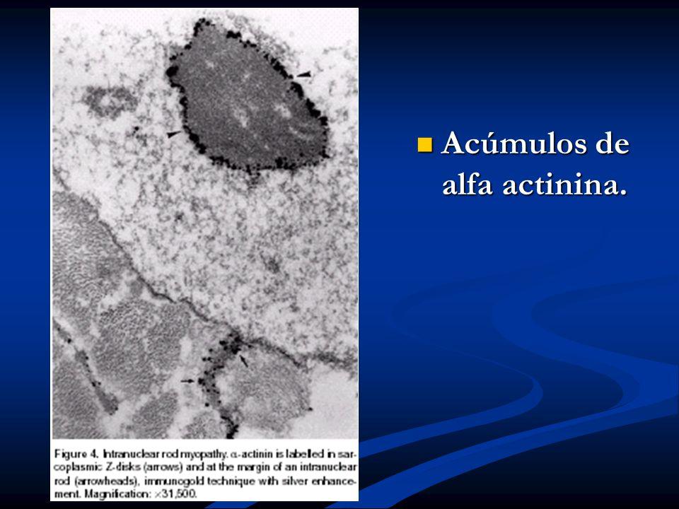Acúmulos de alfa actinina.