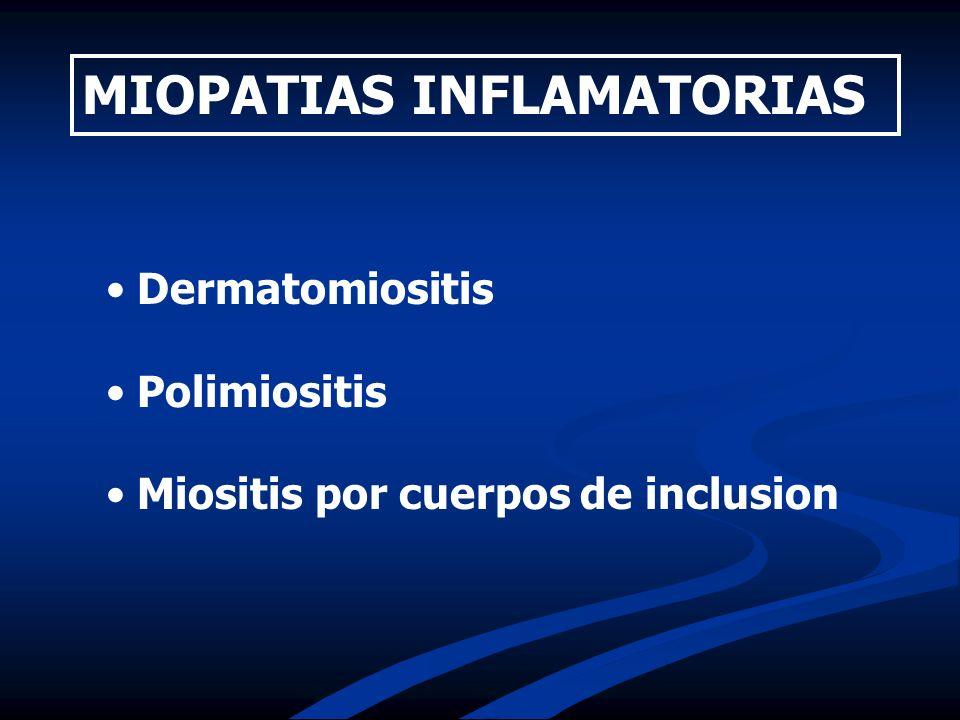 Dermatomiositis Polimiositis Miositis por cuerpos de inclusion MIOPATIAS INFLAMATORIAS
