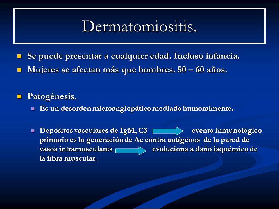 Dermatomiositis. Se puede presentar a cualquier edad. Incluso infancia. Se puede presentar a cualquier edad. Incluso infancia. Mujeres se afectan más