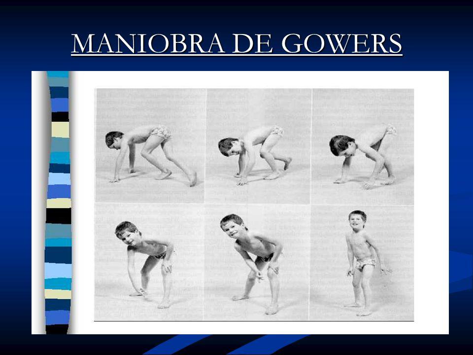 MANIOBRA DE GOWERS