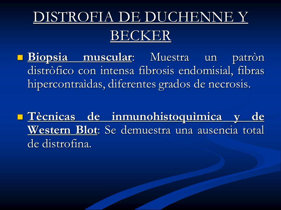 DISTROFIA DE DUCHENNE Y BECKER Biopsia muscular: Muestra un patròn distròfico con intensa fibrosis endomisial, fibras hipercontraìdas, diferentes grad