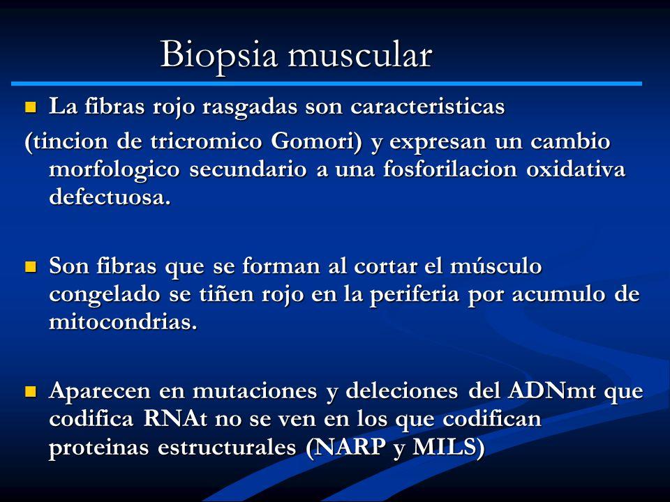 Biopsia muscular La fibras rojo rasgadas son caracteristicas La fibras rojo rasgadas son caracteristicas (tincion de tricromico Gomori) y expresan un