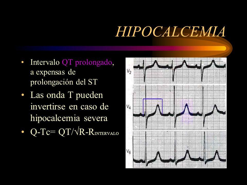 HIPOCALCEMIA Intervalo QT prolongado, a expensas de prolongación del ST Las onda T pueden invertirse en caso de hipocalcemia severa Q-Tc= QT/R-R INTER