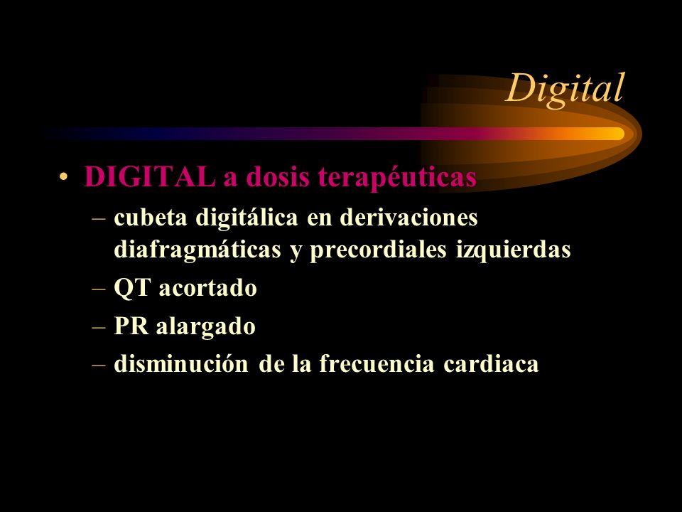 Digital DIGITAL a dosis terapéuticas –cubeta digitálica en derivaciones diafragmáticas y precordiales izquierdas –QT acortado –PR alargado –disminució