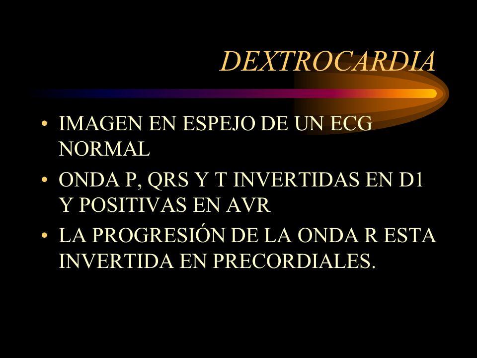 DEXTROCARDIA IMAGEN EN ESPEJO DE UN ECG NORMAL ONDA P, QRS Y T INVERTIDAS EN D1 Y POSITIVAS EN AVR LA PROGRESIÓN DE LA ONDA R ESTA INVERTIDA EN PRECOR