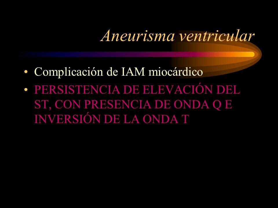 Aneurisma ventricular Complicación de IAM miocárdico PERSISTENCIA DE ELEVACIÓN DEL ST, CON PRESENCIA DE ONDA Q E INVERSIÓN DE LA ONDA T