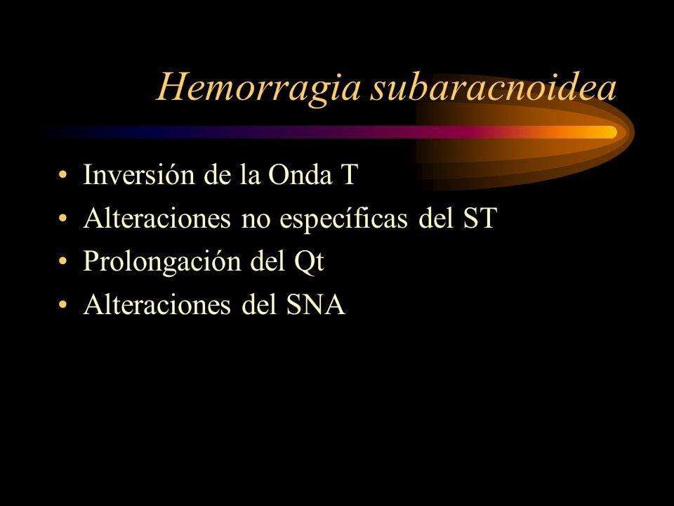 Hemorragia subaracnoidea Inversión de la Onda T Alteraciones no específicas del ST Prolongación del Qt Alteraciones del SNA