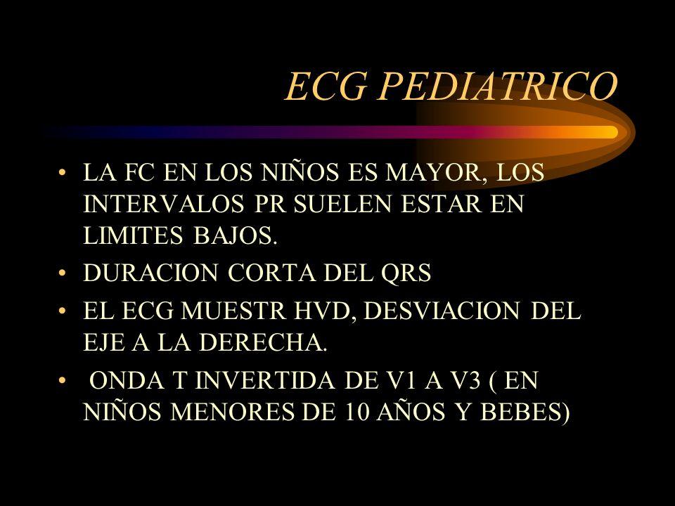 ECG PEDIATRICO LA FC EN LOS NIÑOS ES MAYOR, LOS INTERVALOS PR SUELEN ESTAR EN LIMITES BAJOS. DURACION CORTA DEL QRS EL ECG MUESTR HVD, DESVIACION DEL