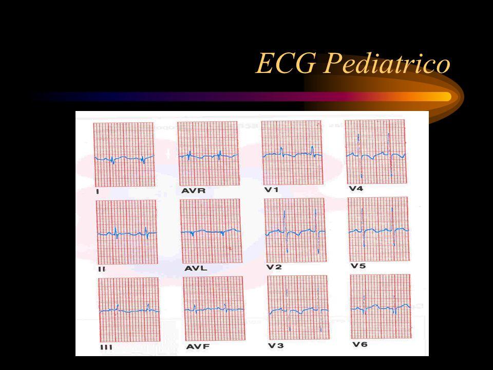 ECG Pediatrico