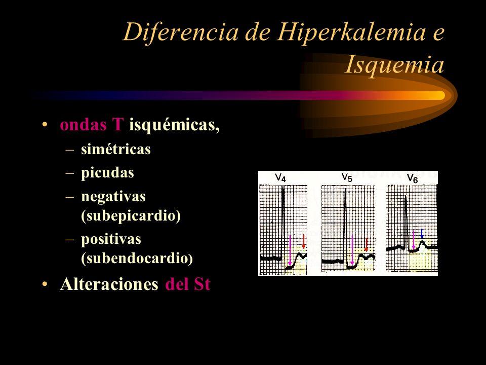 Diferencia de Hiperkalemia e Isquemia ondas T isquémicas, –simétricas –picudas –negativas (subepicardio) –positivas (subendocardio ) Alteraciones del