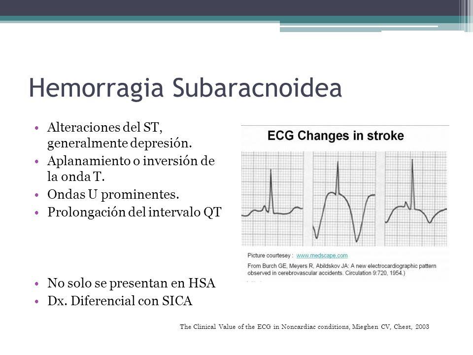 Hemorragia Subaracnoidea Alteraciones del ST, generalmente depresión. Aplanamiento o inversión de la onda T. Ondas U prominentes. Prolongación del int