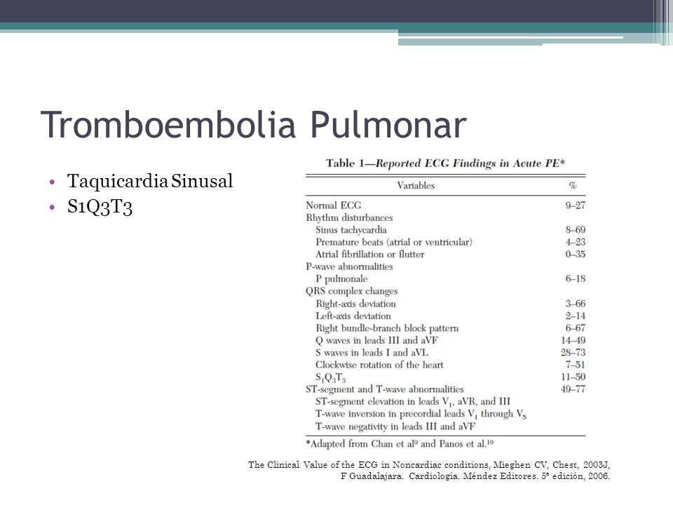 Tromboembolia Pulmonar Taquicardia Sinusal S1Q3T3 The Clinical Value of the ECG in Noncardiac conditions, Mieghen CV, Chest, 2003J, F Guadalajara. Car