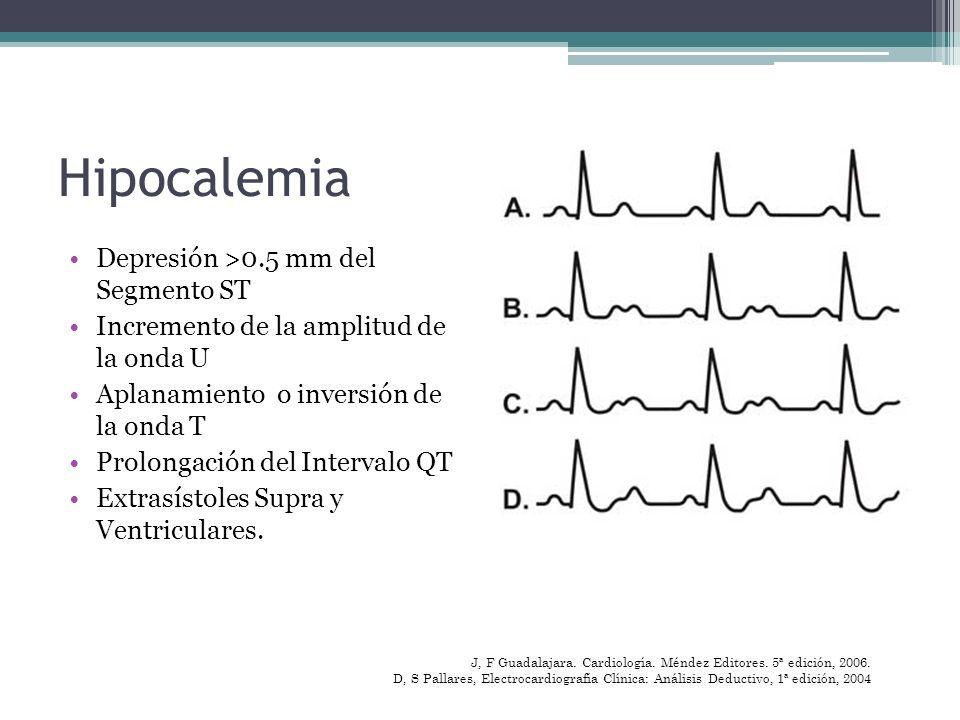 Hipocalemia Depresión >0.5 mm del Segmento ST Incremento de la amplitud de la onda U Aplanamiento o inversión de la onda T Prolongación del Intervalo