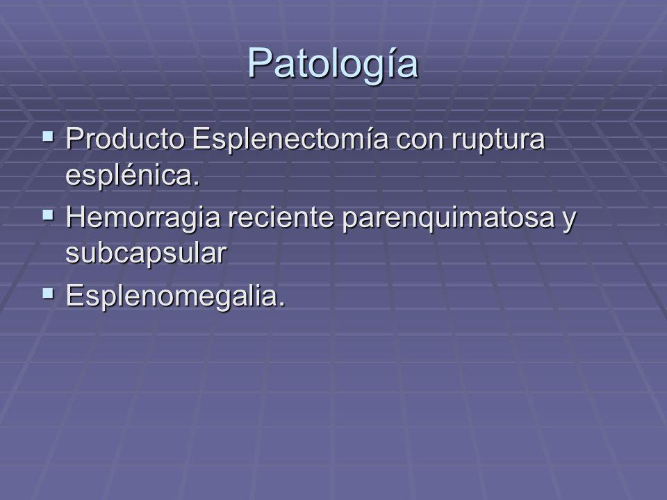 Patología Producto Esplenectomía con ruptura esplénica. Producto Esplenectomía con ruptura esplénica. Hemorragia reciente parenquimatosa y subcapsular