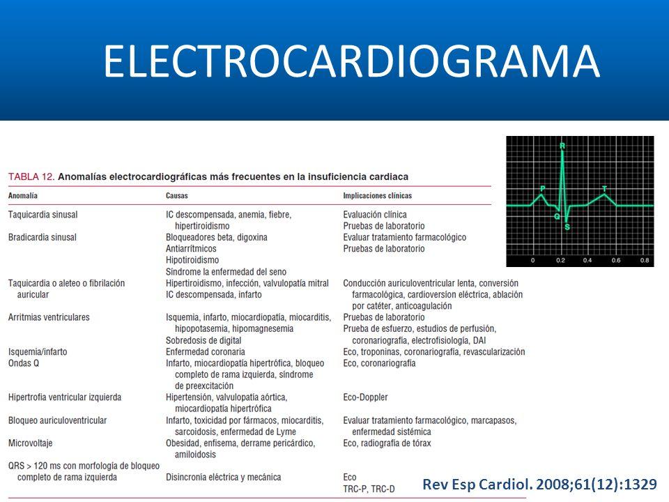 ELECTROCARDIOGRAMA Rev Esp Cardiol. 2008;61(12):1329