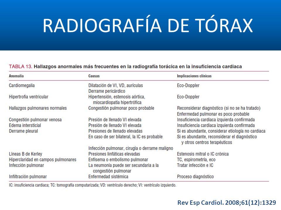 RADIOGRAFÍA DE TÓRAX Rev Esp Cardiol. 2008;61(12):1329