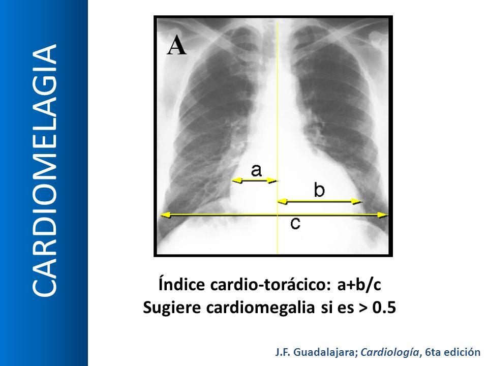 CARDIOMELAGIA Índice cardio-torácico: a+b/c Sugiere cardiomegalia si es > 0.5 J.F. Guadalajara; Cardiología, 6ta edición