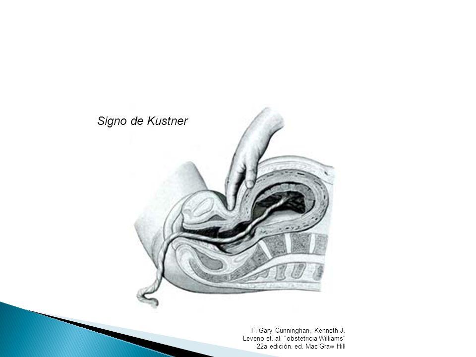 Signo de Kustner F. Gary Cunninghan, Kenneth J. Leveno et. al.