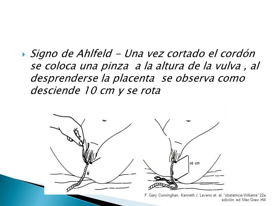Signo de Ahlfeld - Una vez cortado el cordón se coloca una pinza a la altura de la vulva, al desprenderse la placenta se observa como desciende 10 cm