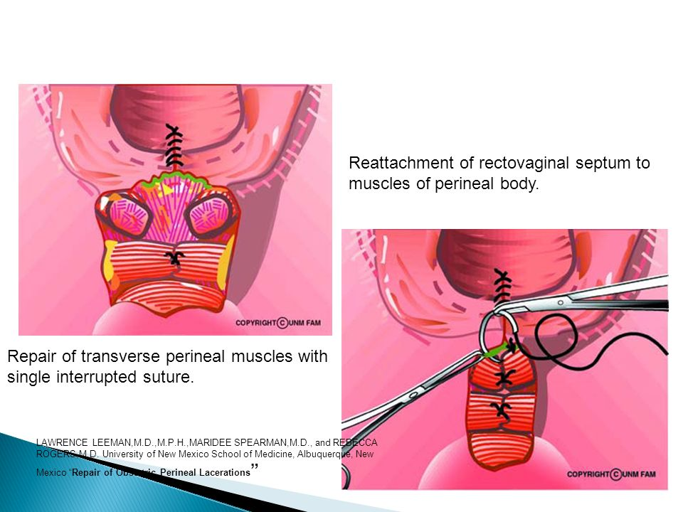 Repair of transverse perineal muscles with single interrupted suture. Reattachment of rectovaginal septum to muscles of perineal body. LAWRENCE LEEMAN