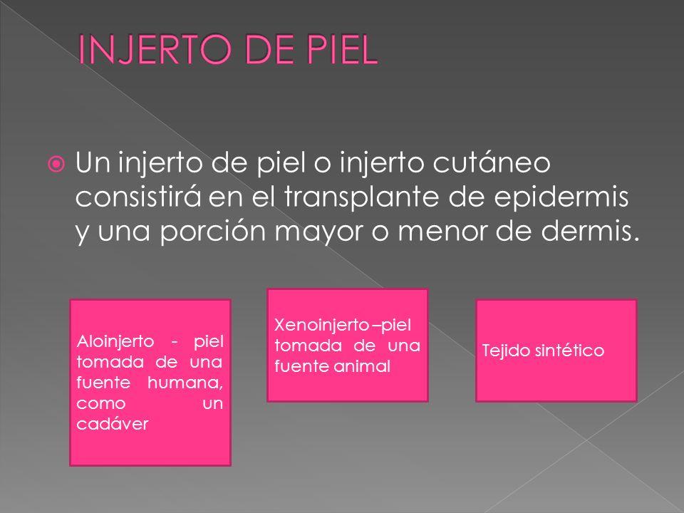 Un injerto de piel o injerto cutáneo consistirá en el transplante de epidermis y una porción mayor o menor de dermis. Aloinjerto - piel tomada de una