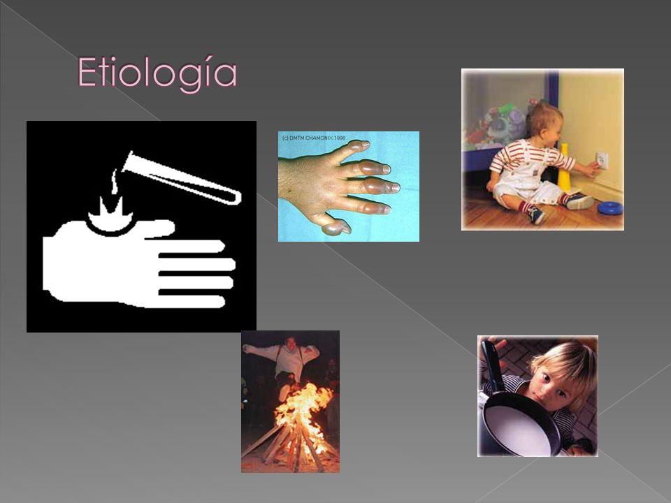 México 2001 – 2003 Ocupa el tercer lugar entre los accidentes 1228 pacientes <14 años Preescolares 53.4% Escaldadura 60.5% Hogar 85.9% Asociación Mexicana de Pediatría A.C