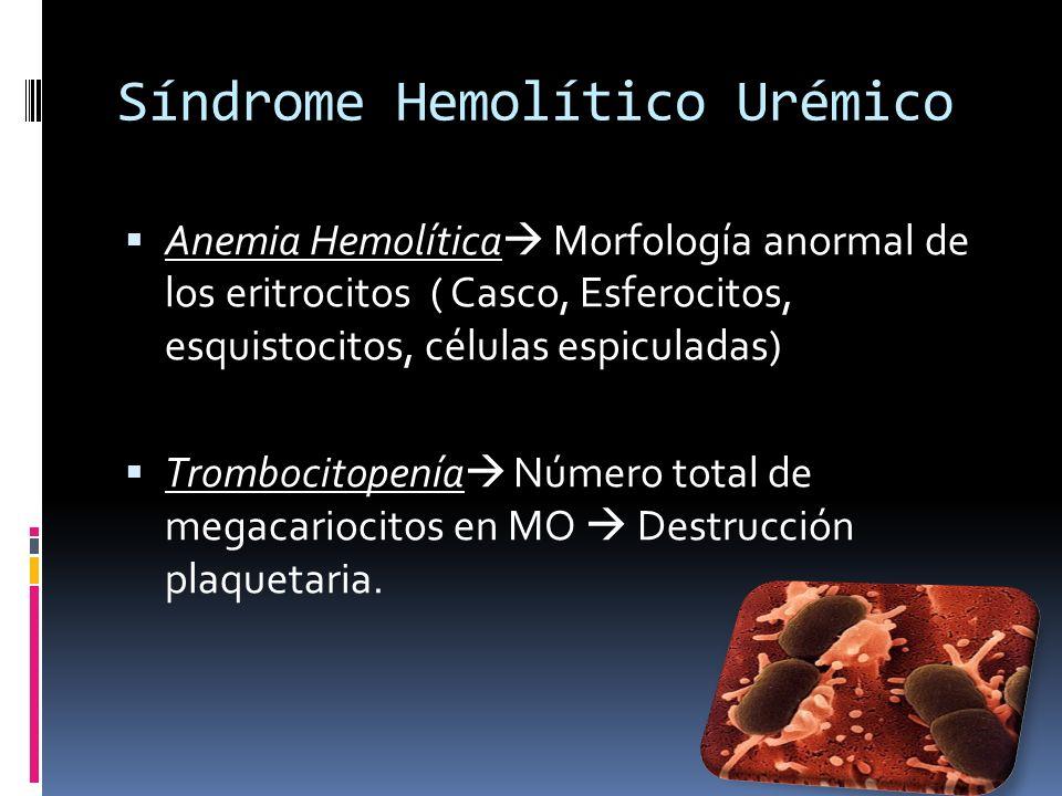 Síndrome Hemolítico Urémico Anemia Hemolítica Morfología anormal de los eritrocitos ( Casco, Esferocitos, esquistocitos, células espiculadas) Tromboci