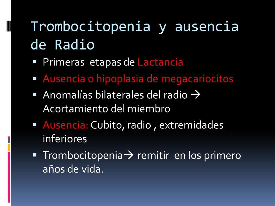 Trombocitopenia y ausencia de Radio Primeras etapas de Lactancia Ausencia o hipoplasia de megacariocitos Anomalías bilaterales del radio Acortamiento