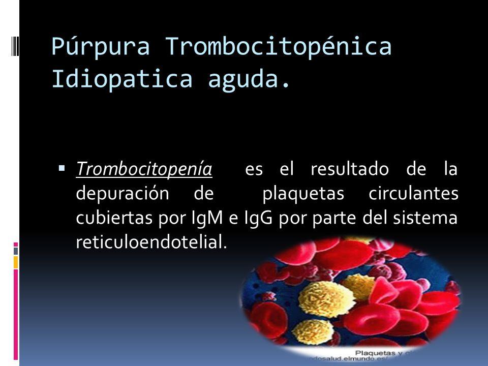 Púrpura Trombocitopénica Idiopatica aguda. Trombocitopenía es el resultado de la depuración de plaquetas circulantes cubiertas por IgM e IgG por parte