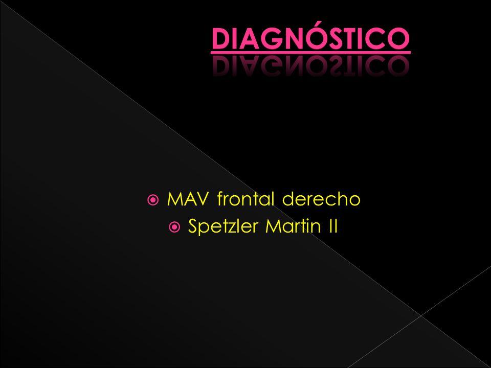 MAV frontal derecho Spetzler Martin II