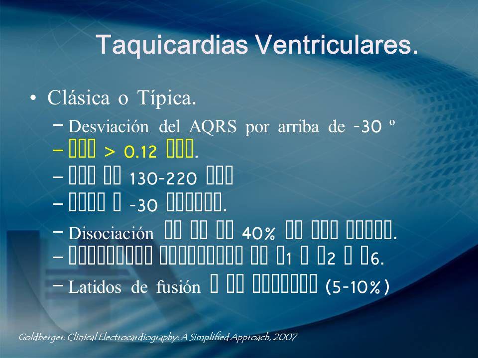 Taquicardias Ventriculares. Clásica o Típica. – Desviación del AQRS por arriba de -30 º – QRS > 0.12 seg. – FVM de 130-220 lpm – AQRS a -30 grados. –