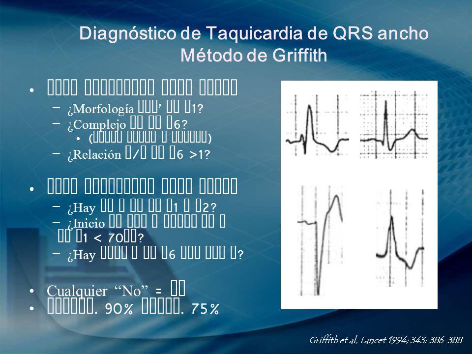 Diagnóstico de Taquicardia de QRS ancho Método de Griffith Para complejos tipo BRDHH – ¿Morfología rSR en V 1? – ¿Complejo RS en V 6? ( puede haber q